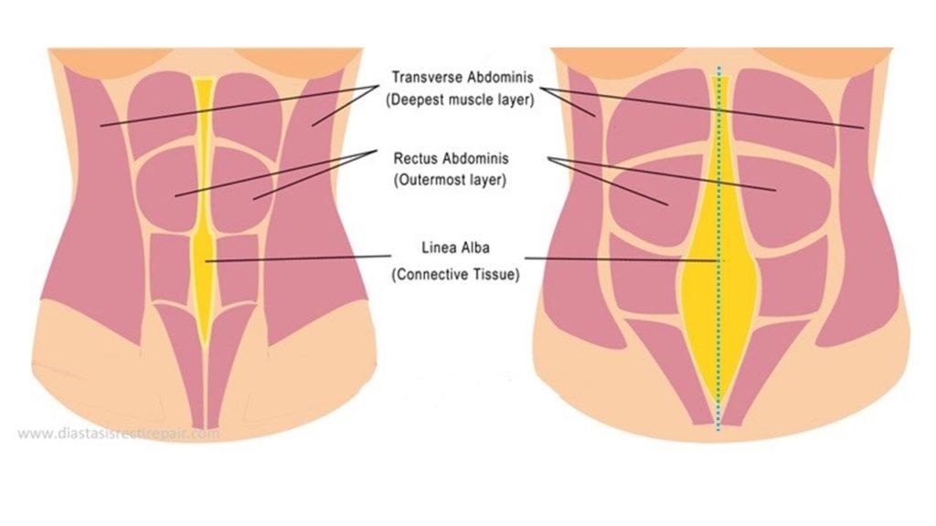 diastasi in gravidanza