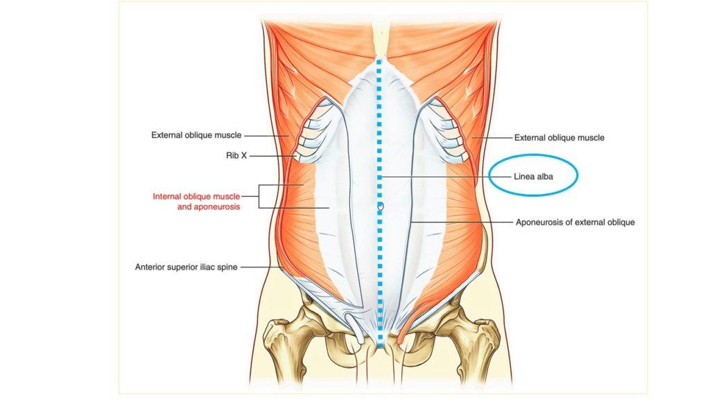 diastasi del retto addominale